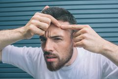 Young man is squeezing pimple on face. H is looking on camera. Isolated on striped and blue background. royalty free stock images