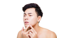 young man Squeezing pimple Royalty Free Stock Photo