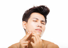 young man Squeezing pimple Stock Photo