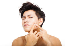 young man Squeezing pimple royalty free stock image