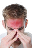 Young man stressed. Young adult man stressed. He rubs his eyes in pain. Isolated on white background. The red spot on his forehead represents his pain Royalty Free Stock Photos