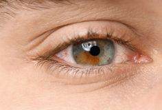 Young man suffering from allergy, closeup. Red eye royalty free stock image