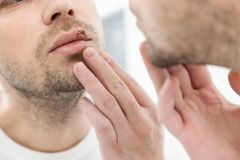 Young man suffering from herpes on his mouth Royalty Free Stock Images