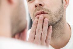 Young man suffering from herpes on his mouth Stock Images