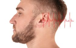 Young man with symptom of hearing loss. On white background. Medical test royalty free stock photos