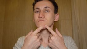 Young man tries to squeeze out a pimple on his face.  royalty free stock photos