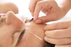 Young man undergoing acupuncture treatment in salon, closeup royalty free stock images
