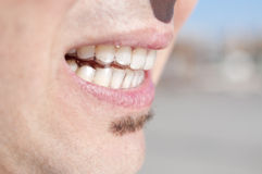 Young man wearing clear retainers Stock Photos