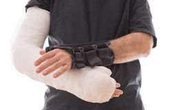 Young man wearing a long arm cast and a splint. Young man with white long arm plaster / fiberglass cast on one arm and a wrist and thumb splint on the other stock photos