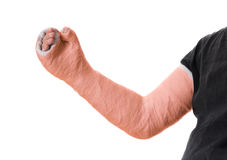 Young man wearing an orange long arm plaster  fiberglass cast Royalty Free Stock Images