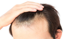 Young man worry hair loss problem for health care shampoo and be Royalty Free Stock Photo
