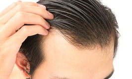 Young man worry hair loss problem for health care shampoo and be. Auty product concept Royalty Free Stock Photos