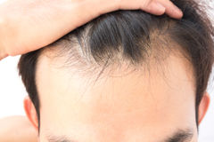 Young man worry hair loss problem for health care shampoo and be. Auty product concept Stock Photo