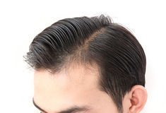 Young man worry hair loss problem for health care shampoo and be Stock Photos