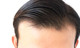 Young man worry hair loss problem for health care shampoo and be Stock Photography