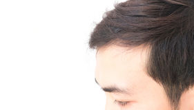 Young man worry hair loss problem for health care shampoo and be Royalty Free Stock Images