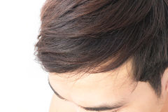 Young man worry hair loss problem for health care shampoo and be Stock Photo