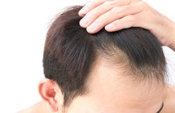 Young man worry hair loss problem for health care shampoo Stock Image