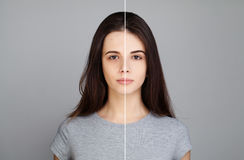 Young Model Woman with Skin Problem. Female Face Royalty Free Stock Images