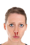 Young pretty woman with epistaxis Royalty Free Stock Photo