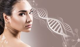 Young sensual woman with vitiligo disease in DNA chains Royalty Free Stock Image