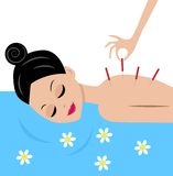 Young woman accept procedure acupuncture. Vector illustration Stock Image