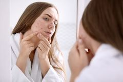 Young woman with acne problem near mirror. In bathroom royalty free stock image