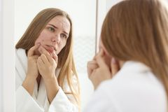 Young woman with acne problem near mirror. In bathroom stock images