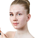 Young woman with acne before and after treatment. Stock Photos