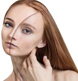 Young woman with acne before and after treatment. Royalty Free Stock Photos