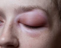 Young woman with allergic reaction on eye. Closeup photo royalty free stock photos