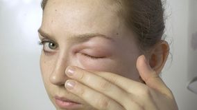 Young woman with allergic reaction touching eye. On white background stock video footage