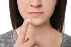 Young woman applying cold sore cream on lips. Closeup Stock Photography