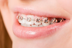 Young woman with brackets on teeth Royalty Free Stock Images