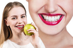 Young woman with brackets on teeth eating apple Royalty Free Stock Image