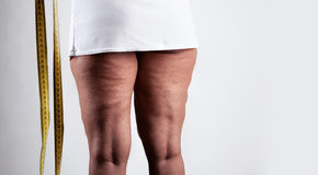 Young woman with cellulite Royalty Free Stock Image