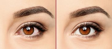 Young woman, closeup of eyes. Visiting ophthalmologist stock photos