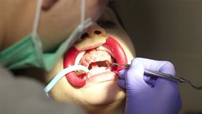 Young woman with an expander in mouth at the dental clinic. Application of protective whitening gel to the teeth. Dentist using saliva ejector or dental pump stock footage