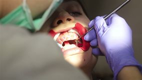 Young woman with an expander in mouth at the dental clinic. Application of protective whitening gel to the teeth. Dentist using saliva ejector or dental pump stock video