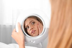 Young woman with eyelash loss problem looking in mirror royalty free stock photo
