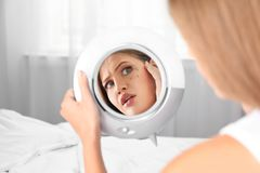 Young woman with eyelash loss problem looking in mirror stock images