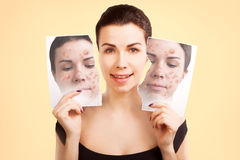 Young woman fights ugly skin, skincare concept Stock Photo