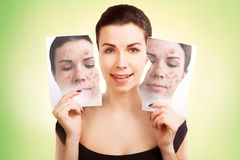 Young woman fights ugly skin, skincare concept Stock Photography
