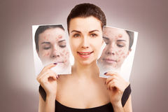 Young woman fights ugly skin, skincare concept Royalty Free Stock Photography