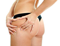 Young woman folding skin on her hips Stock Images