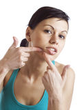 Acne removal Stock Images
