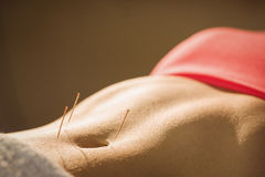 Young woman getting acupuncture treatment Royalty Free Stock Photography