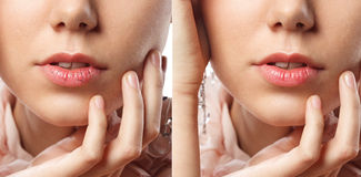 Young woman has chapped lips. Close up of young female chapped lips before and after treatment Stock Photo