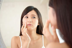 Young woman having skin problems Stock Images