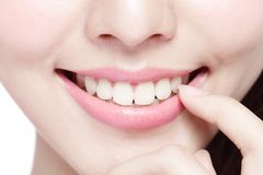 Young woman health teeth Stock Photo